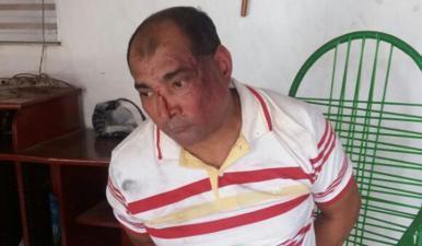 Homem mata mãe e filha a marretadas no município de Codó