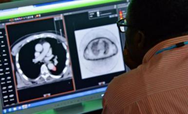 Mortes por câncer devem atingir número recorde de 9,6 milhões este ano